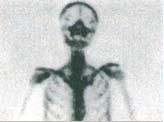 テクネチウム